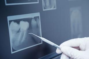 Tante terapie offerte   Studio Odontoiatrico Bonacina